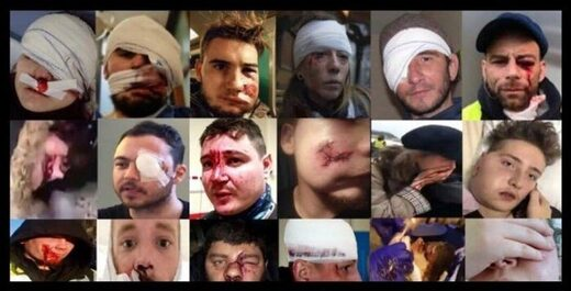 Injuries amongst the Yellow Vests