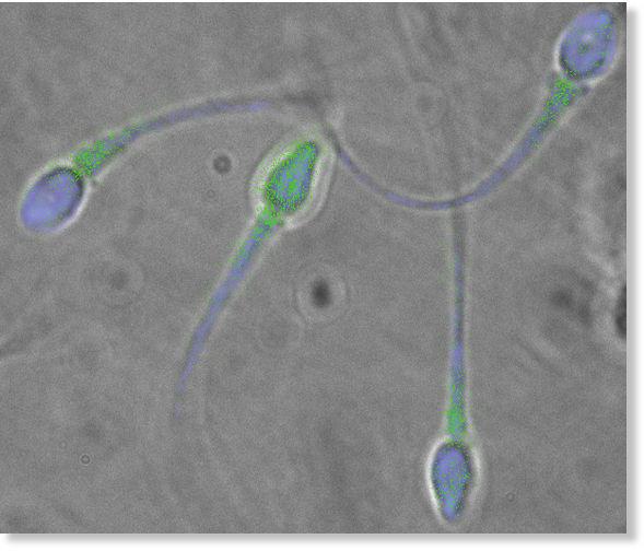 tservikalnaya-sliz-ot-spermi