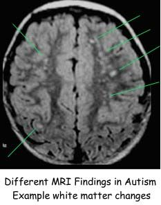 distinct features of autistic brain revealed in novel