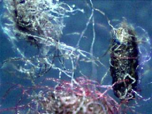 Morgellons Disease and The Quantum Leap of Awareness -- Health