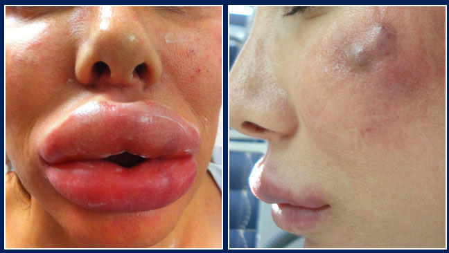 Botox style do it yourself shots disfigure women health image solutioingenieria Images