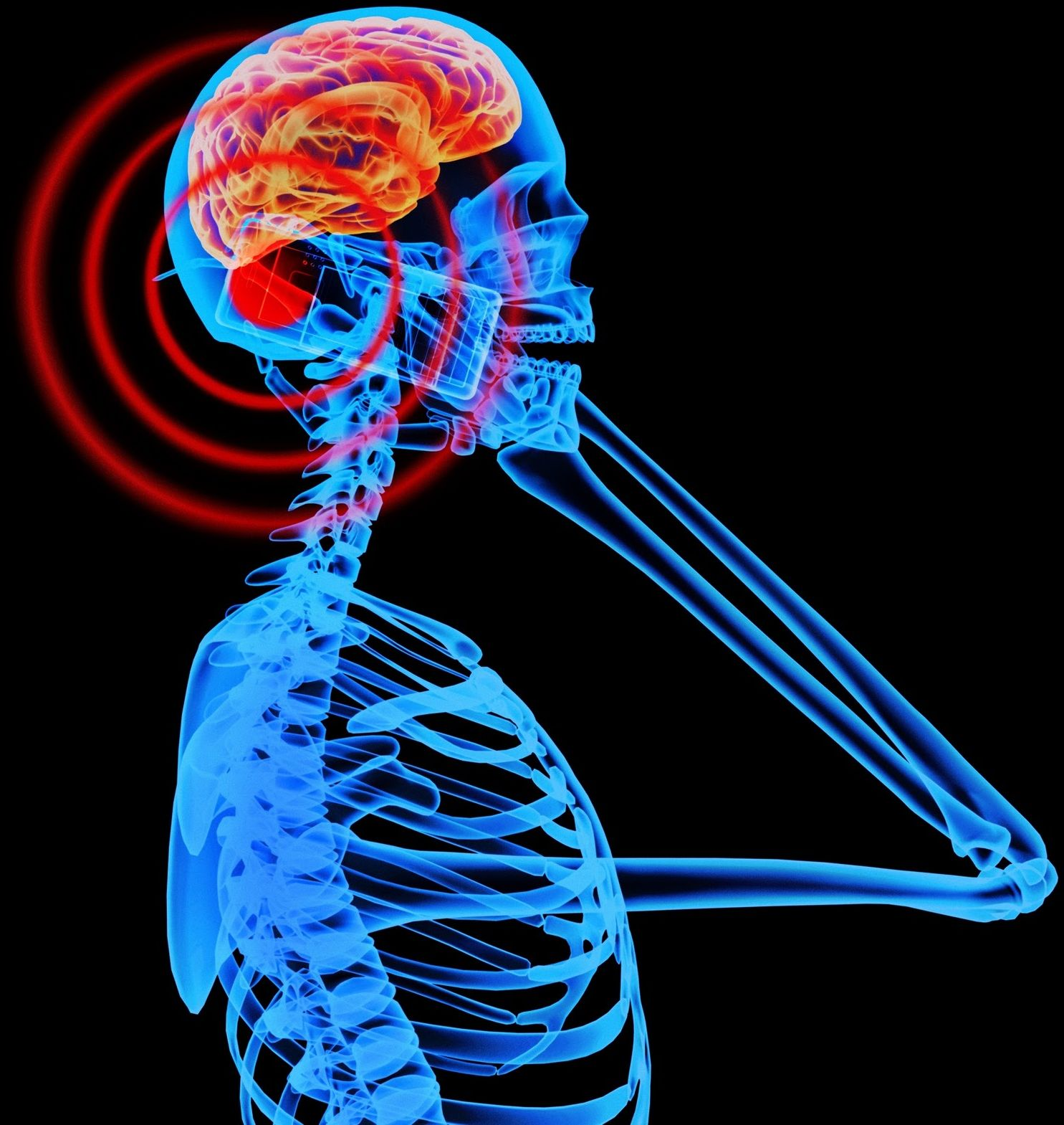 A real written research paper on cell phone brain tumor
