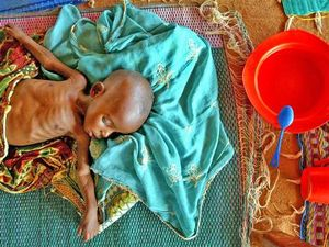 malnourished infant in Maradi