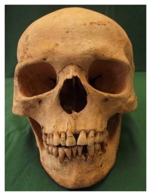 Skull with Leprosy