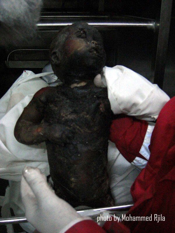 Why Didn U0026 39 T The Us Invade Israel When It Used Chemical Weapons On Palestinians