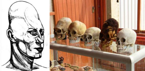 Elongated human skulls of Peru: Possible evidence of a lost human species?