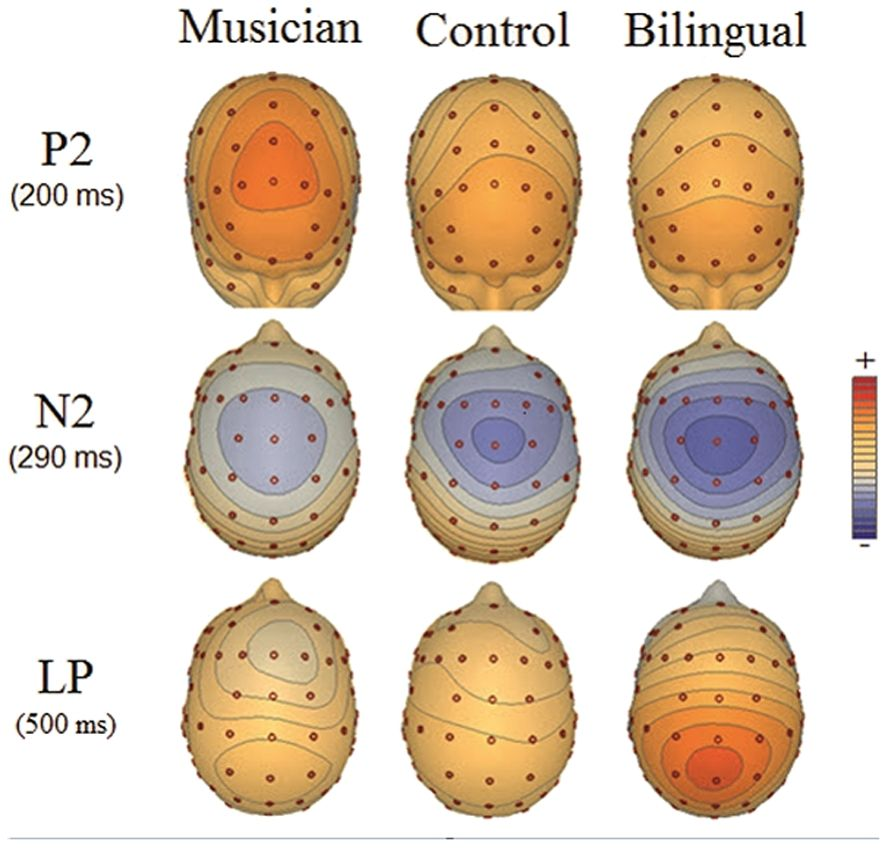 Music, language, and the brain: Are you experienced?